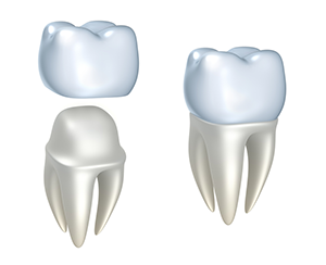 Dental Crowns Mineola TX